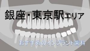 銀座・東京駅エリアでおすすめのインプラント歯科